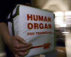 Transplant cu forta